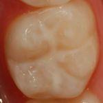 Zahn mit aufgetragenem Versiegelungsgel