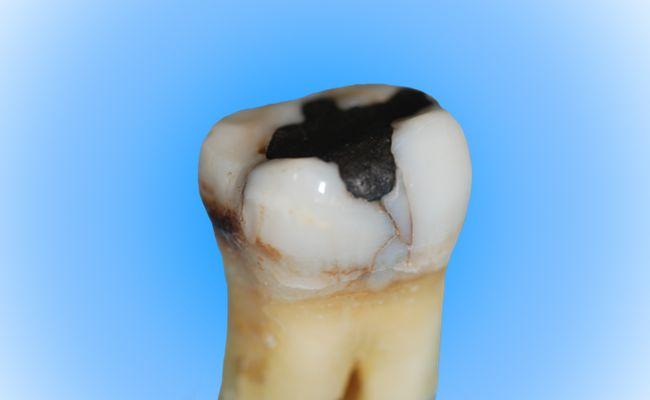 Amaögamfüllung im Zahn