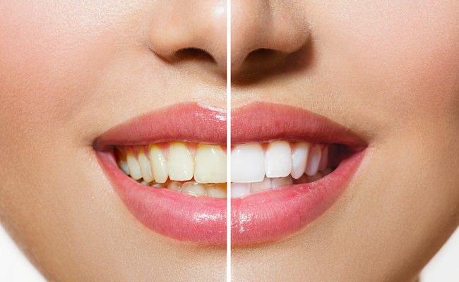 Vorher-Nachher-Ansicht der Zähne im Rahmen der Zahn-Bleachings