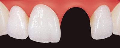 Zahnlücke der Frontzähne