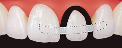 Aufbau des fehlenden Zahnes mit Composit