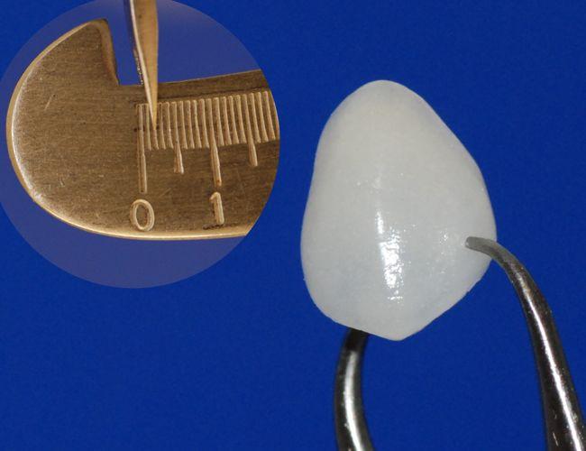 Ein dünnes Lumineer in einer Stärke von nur 0,2 mm