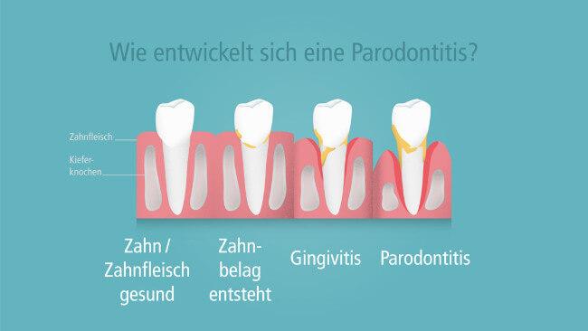 Wie entwickelt sich eine Parodontitis? Die vier Stadien einer Parodontitis als Grafik dargestellt