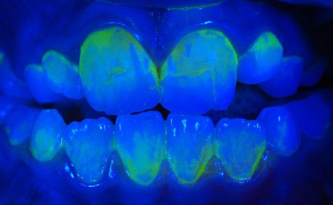 Zahnbelag beim Kind unter UV-Licht